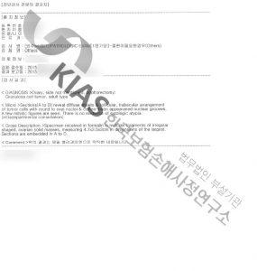 난소경계성종양_조직검사